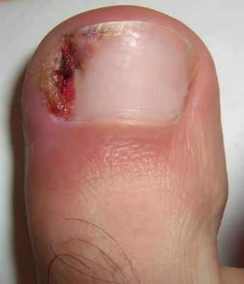 An ingrown toenail which is infected the skin is red and swollen and there is some pus
