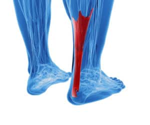 An illustration showing the anatomy of the Achilles tendon. The tendon is highlighted in red and the rest of the anatomy is blue.