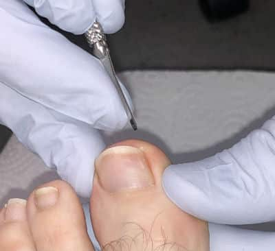 A Podiatrist can Help with Your Ingrown Toenails