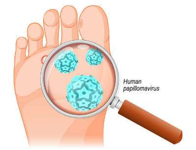 Cartoon of a papilloma virus that causes plantar warts