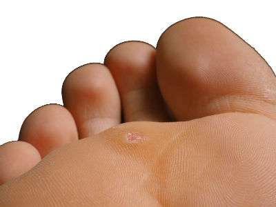 A wart on the bottom of a foot